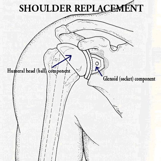 Orthosports Shoulder Replacement