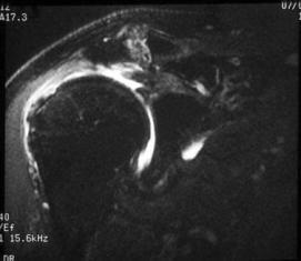 Acromioclavicular Joint Degeneration