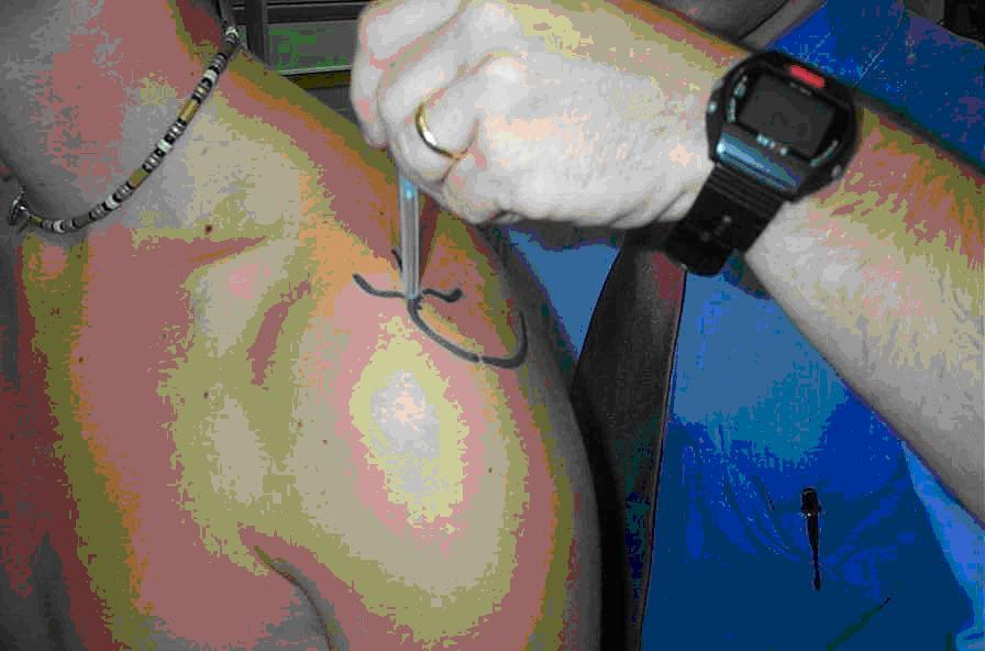 Orthosports Treatment