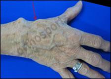 Injury Basal Thumb Education