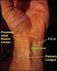 Injury Carpal Tunnel Education