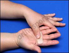Injury Intermetacarpal Education