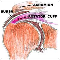 Injury Subacromial Cortisone Education