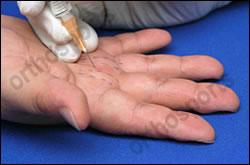 Injury Trigger Finger Education