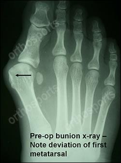 Hallux Valgus (Bunions), Orthosports Orthopaedic Surgeons