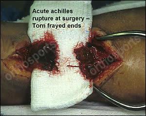 Acute Achilles Tendon Rupture