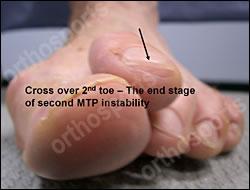 Foot Synovitis