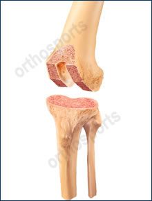 Knee TKR