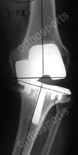 Knee TKR Pain