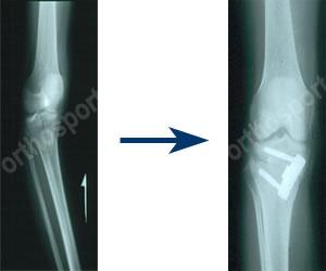 Orthosports Orthopaedic Surgeons Sydney